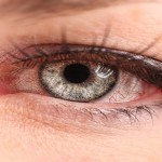 Cure Your Pink Eye With This Common Kitchen Staple