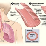 Top Five Asthma Natural Remedies
