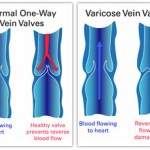 Three Amazing Home Remedies To Treat Varicose Veins Naturally