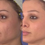 8 Natural Home Remedies To Improve Age Spots And Hyperpigmentation