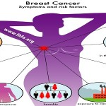 FIVE Important Risk Factors Of Breast Cancer