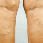 Drops For Varicose Veins – Make Them Yourself