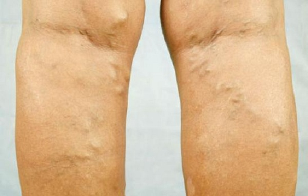 drops-for-varicose-veins-make-them-yourself