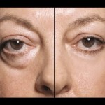 Amazing Home Remedy For Treating Eye Bags