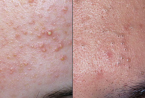 dermnet_duo_acne_whitehead_blackhead