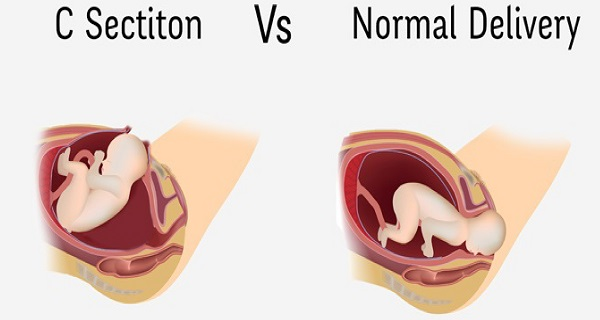 CSection-vs-Normal