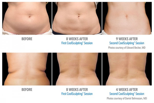 Coolsculpting-Before-After-2-e1439426898249