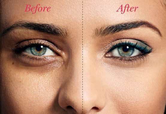 remove-dark-circles-naturally