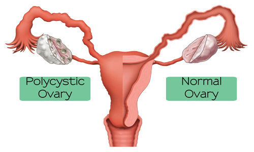 how to help pcos mentrrual pain