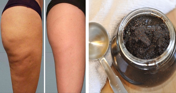 2-Ingredients-Anti-Cellulite-Paste-The-Magic-Cellulite-Eraser