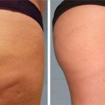 Add This Ingredient in Your Water and Get Rid of Cellulite and the Extra Pounds