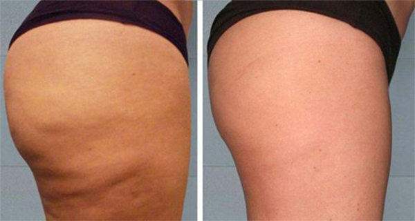 Add-This-Ingredient-in-Your-Water-and-Get-Rid-of-Cellulite-and-the-Extra-Pounds
