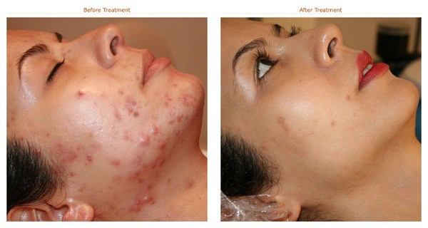 FORGET-Expensive-Products-Naturally-Remove-Acne-Scars