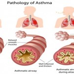 6 HIDDEN TRIGGERS FOR ASTHMA AND HOW TO AVOID THEM