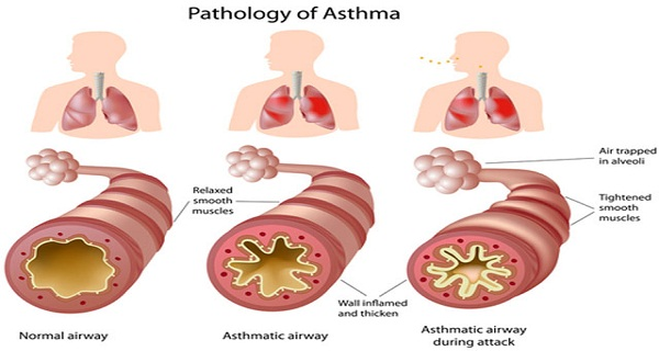 Folk-Remedies-for-Bronchial-Asthma