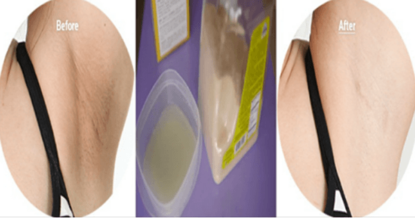 Get-White-Underarms-In-3-Minutes