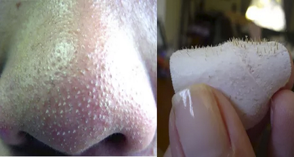 How-To-Get-Rid-Of-Blackheads-On-Nose-Fast-At-Home