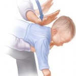 How To Save Your Baby From Choking Within 3 Minutes