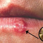 Garlic Gets Rid of Herpes Overnight? Fact or Fiction?