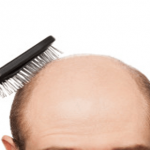 Recipe For Baldness: Hair Begins to Grow After 2 Days