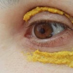 She Applied Turmeric Around Her Eyes.. 10 Minutes Later UNBELIEVABLE MIRACLE