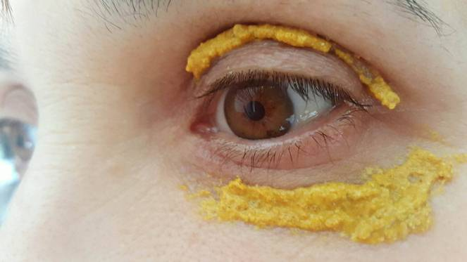 She-Applied-Turmeric-Around-Her-Eyes.-10-Minutes-Later-UNBELIEVABLE-MIRACLE