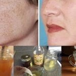 The Quickest and Most Effective Way to Erase Spots, Stains, and Scars from the Skin