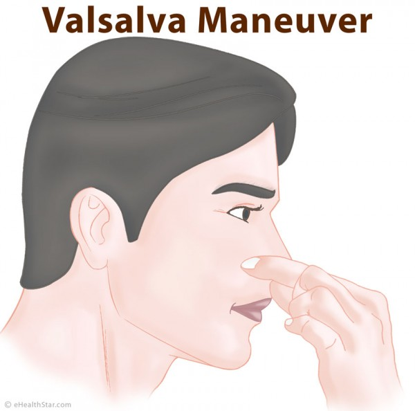 The-Valsalva-maneuver