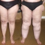 Lipedema: The Fat-Storing Disease Immune to Diet and Exercise
