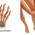 10 PROVEN HOME REMEDIES FOR ARTHRITIS AND JOINT PAIN