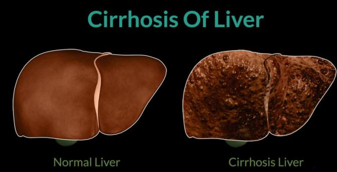 Cirrhosis-of-the-liver