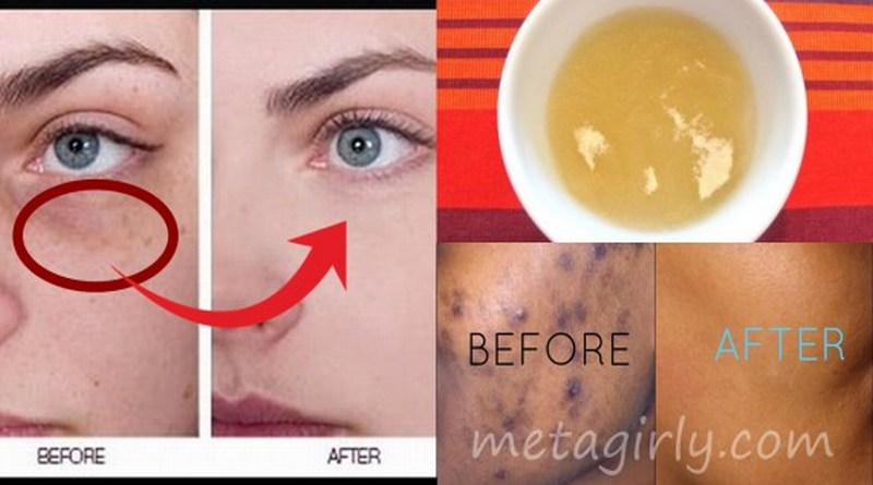 Get-Rid-Of-Black-Spots-On-Face-Just-In-15-Minutes-VIDEO