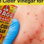 Apple Cider Vinegar for Acne? Folk Remedy Actually Works Better Than Chemicals