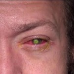 Cincinnati Man Goes Blind in One Eye After Sleeping in Contacts