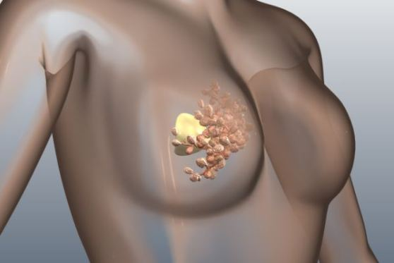 Breast-Cancer-Preventions1