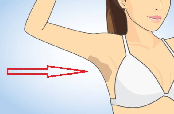 How-To-EASILY-Lighten-Dark-Underarms-Using-These-Common-Kitchen-Ingredients