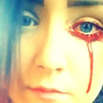 17 Year Old Girl Suffers From Bizarre and Horrific Ailment That Makes Blood Seep From Her Eyes and Ears
