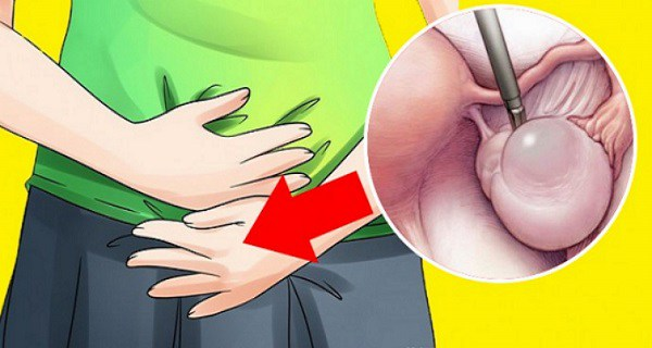 Ovarian-Cyst-–-Maybe-You-Don't-Know-That-You-Have-It.-Here-Are-The-Symptoms