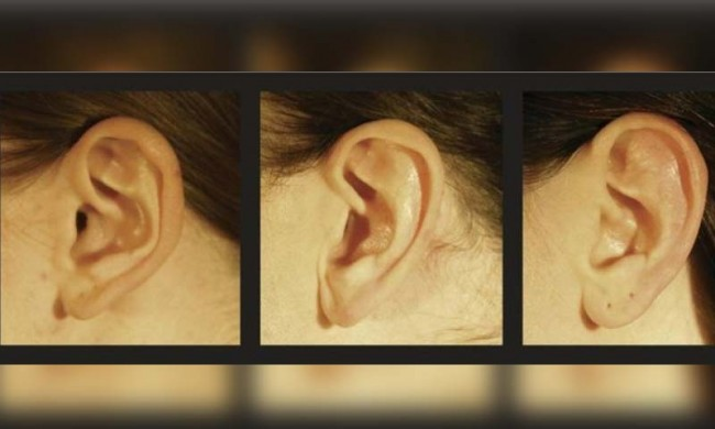 ear-shapes