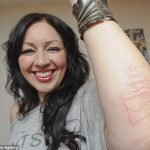 Bizarre: Woman Who Is Allergic to Her Own Touch