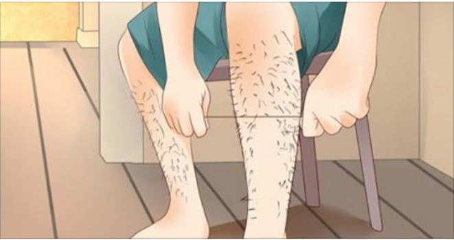 How To Naturally Remove Body Hair Permanently Womans Vibe