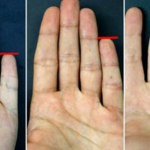 Your Little Finger Reveals What Kind of A Person You Are