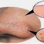 How To Get Rid Of Blackheads And Whiteheads Naturally
