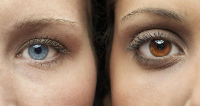 How To Turn Dark Brown Eyes To Light Brown Naturally