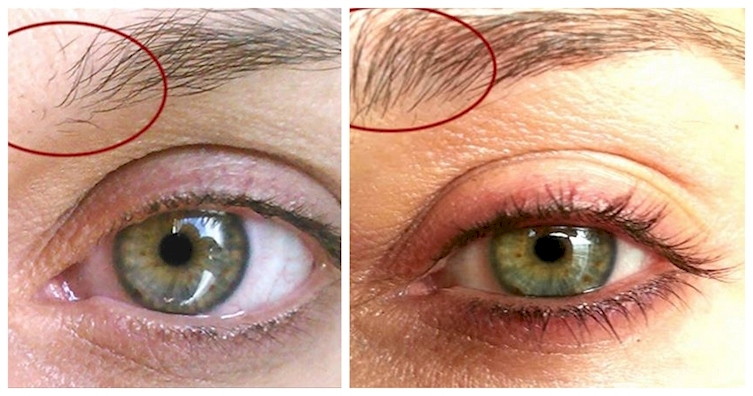 How To Get Thicker Eyebrows Naturally Fast Olive Oil