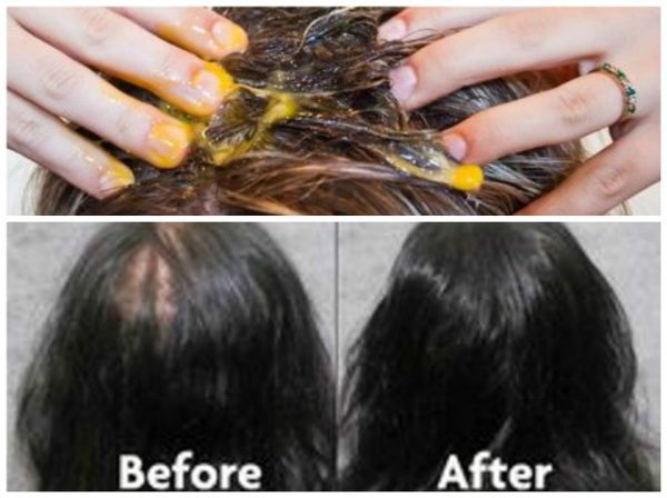With-This-Recipe-Of-Just-3-Ingredients-Your-Hair-Will-Stop-Falling-And-Begin-To-Grow-Like-Crazy