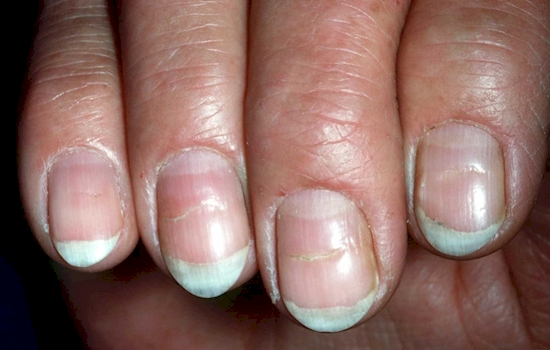 The Lines On Your Nails Mean A Lot For Your Health But It