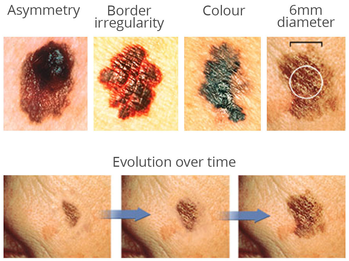 skin-cancer-early-diagnosis