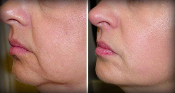 No-More-Wrinkles-and-Sagging-Skin-on-Your-Face-–-2-Ingredients-only