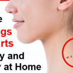 How to Remove Skin Tags and Warts Naturally and Cheaply at Home